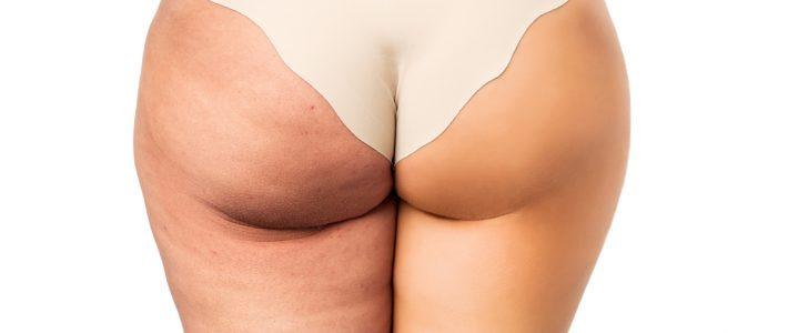 Tras operarse para bajar de peso, la mitad de los pacientes necesita cirugías reparadoras